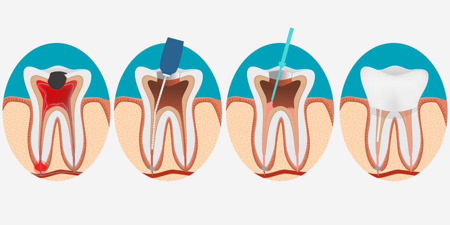 endodoncia en alicante